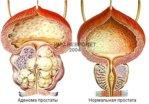 prostata_adenoma.jpg